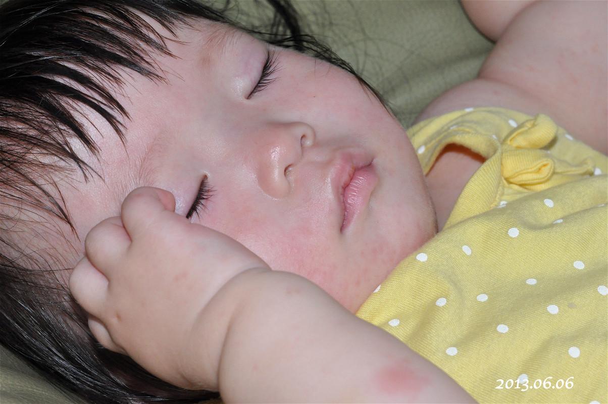 小柚子——幼儿急疹记
