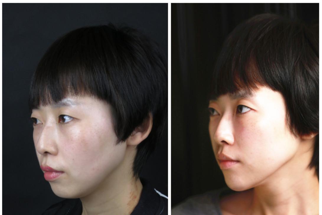 要凸平_而且鼻子也显得比较挺,眼睛凸的问题也没那么明显.