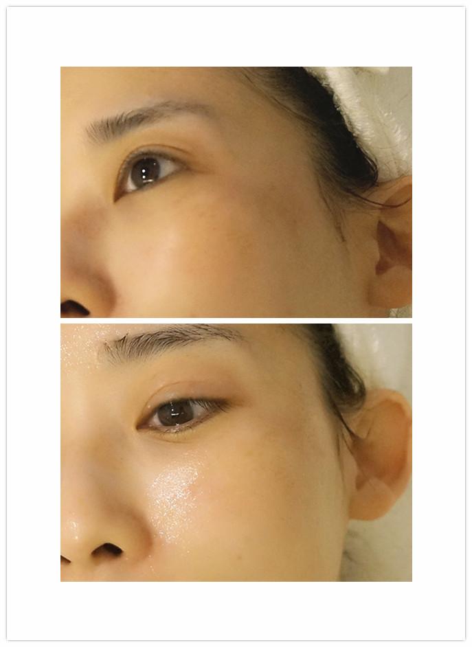 四个步骤过后美疗师会帮忙涂抹化妆水