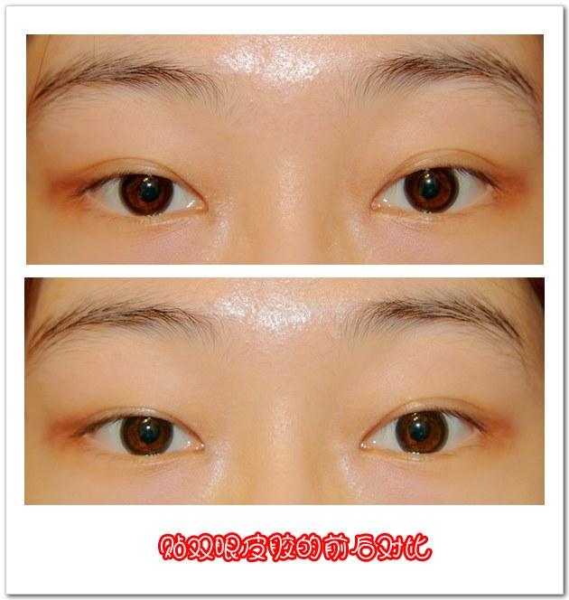 【眼睛瞬间放大】内双的双眼皮贴法