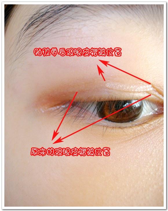 内双的双眼皮贴法
